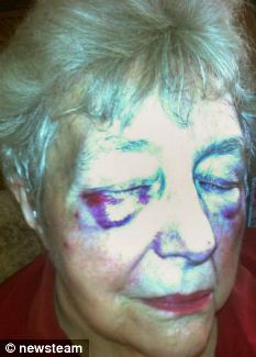 Woman Attacked By Black Domestic Cat