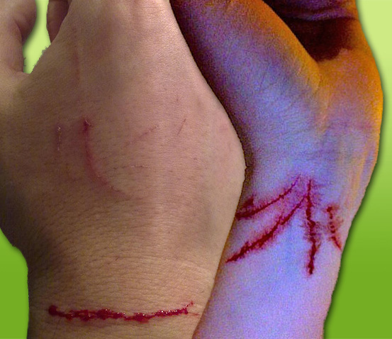 Cat scratches on hands and arms