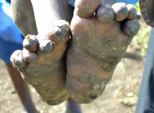 Chiggers infecting feet of perso