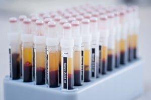 New Treatments for feline diseases