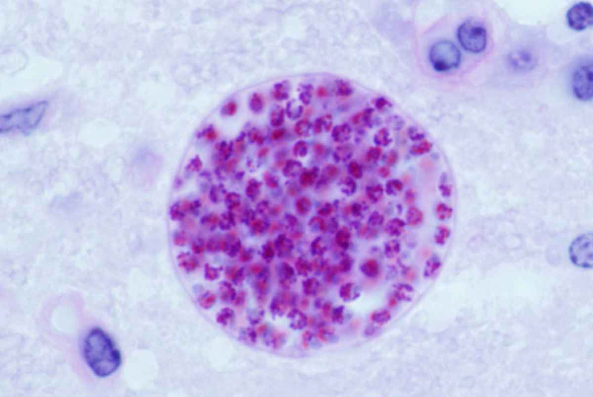Toxoplasma gondii cyst in mouse brain.