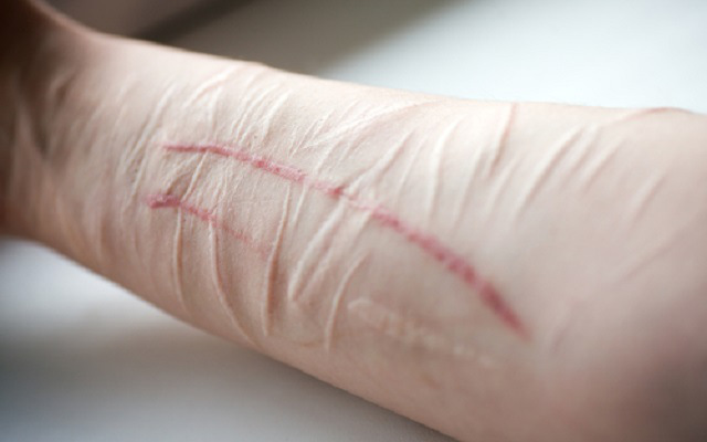 Self-harm hashtag cat