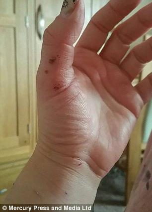 scratched hands