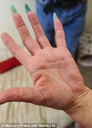 Ms Whittaker's scratched hands