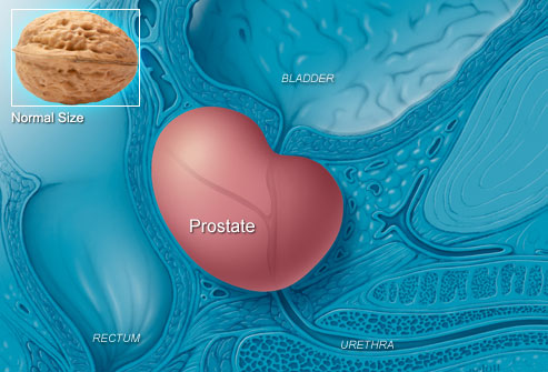Link between prostate cancer and toxoplasma gondii