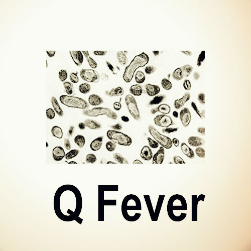 Q fever under a microscope