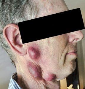 Feline tularemia caused glandular tularemia in this man