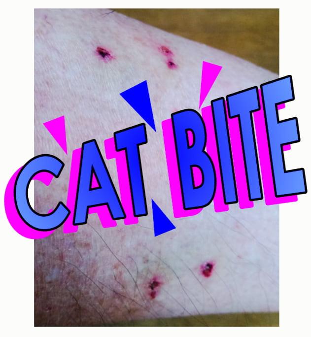 Cat bite