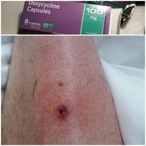 Cat bite and antibiotic