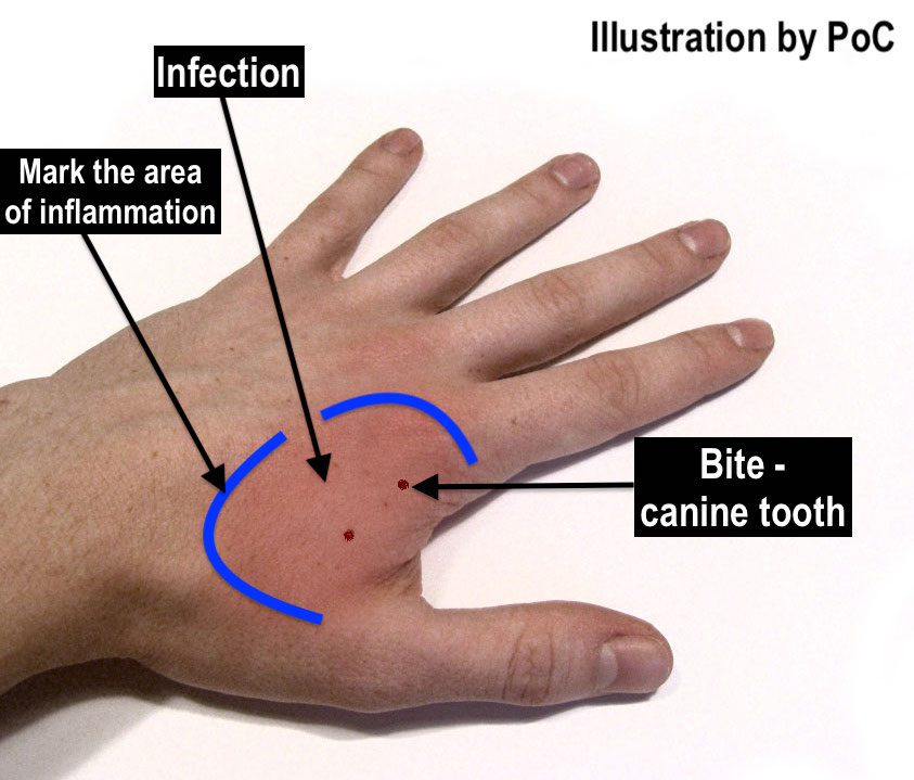Marking the area of inflammation from a cat bite