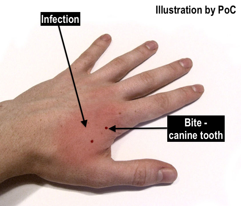 Cat bite signs of infection.