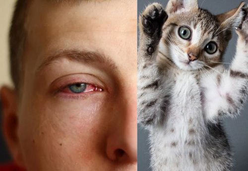 Allergy to cats