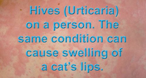 Hives (Urticaria) can affect cats and people