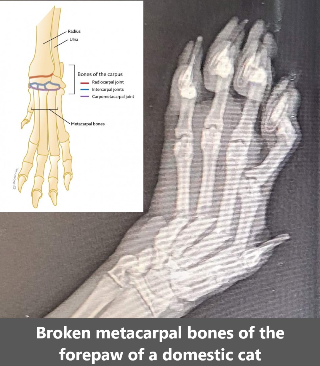 Broken metacarpal bones of the forepaw of a domestic cat due to unknown trauma