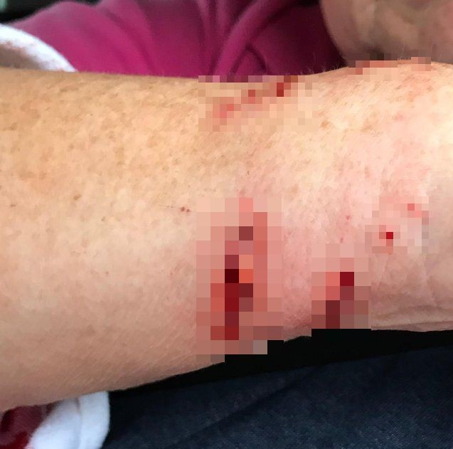 Gash on the arm allegedly caused by a Bengal cat