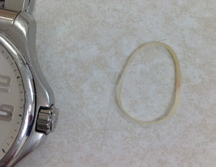 Rubber band extracted from the base of the tongue of a black cat in the surgery for a laser declaw